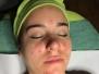 Aknes bőr kezelés
